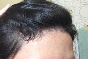 Com 1 ano e 8 meses de operada, os cabelinhos novos nascendo.